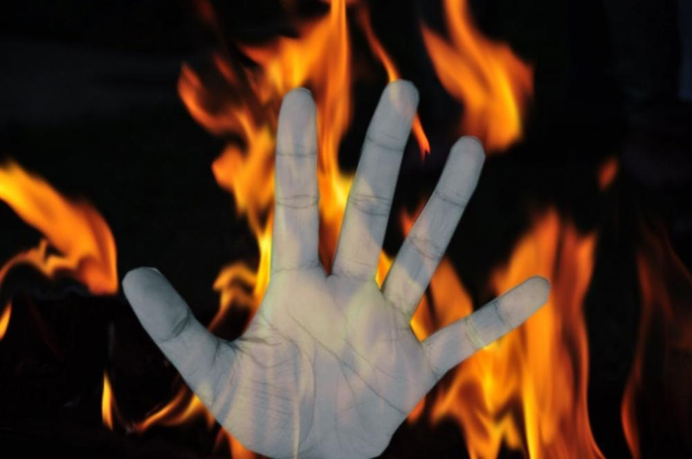 The Weekend Leader - Woman dies after being set ablaze by son, daughter-in-law